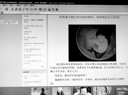 网传看胎囊可知生男生女 专家称毫无依据(图)