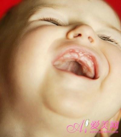 宝宝/3.小孩肚脐没长好该如何护理?
