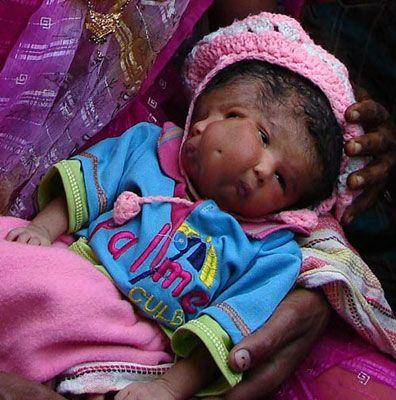 合肥双面胎儿,武汉人鱼胎儿 让父母心碎的畸胎宝宝