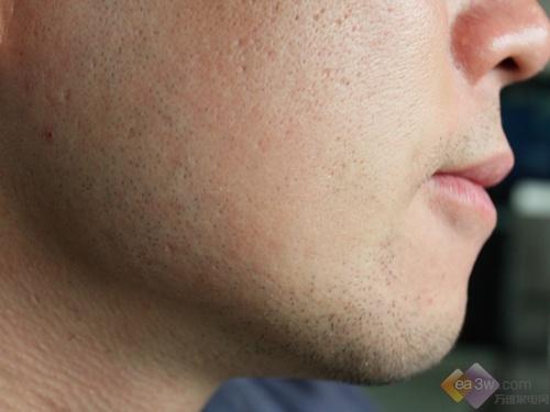 剃须前胡须情况(右脸)