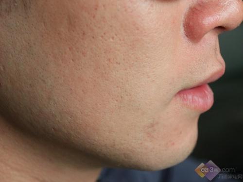 剃须后胡须情况(右脸)