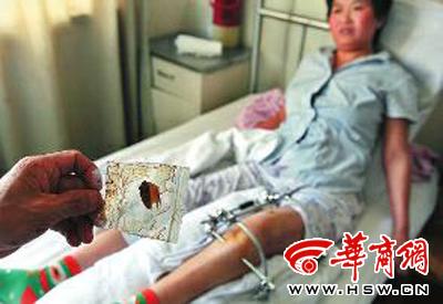 残留在焦女士腿里的手术手套碎片给她造成了巨大痛苦 本报记者 张杰 摄