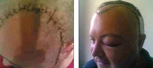 柯克兰为做手术,脸部1/4皮肤曾被剥离