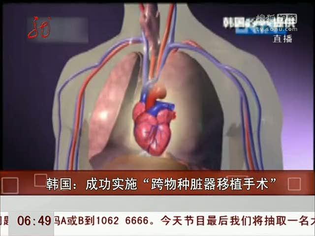 """韩国成功实施""""跨物种脏器移植手术"""""""