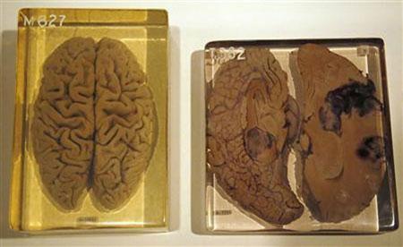 人类 大脑/3、保存爱因斯坦的大脑