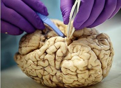 科技 解剖/揭秘大脑解剖全过程:苍白血管清晰可见