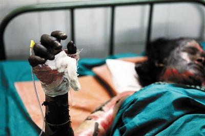 死亡的人???-yf_印度烟花厂火灾至少30人死亡(图)