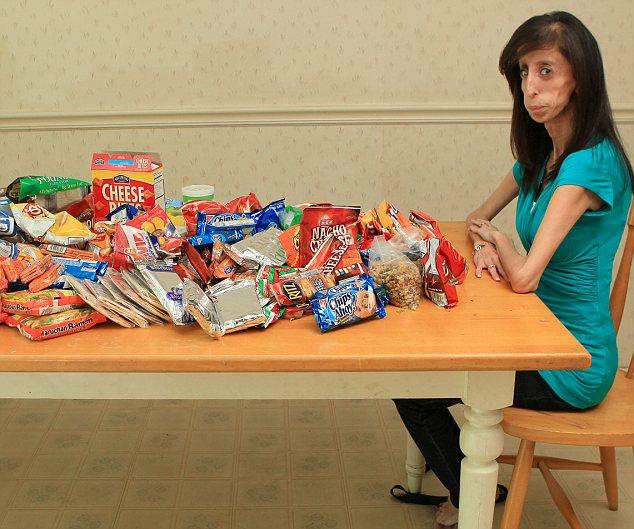 世界上最丑陋的女人:天生缺乏脂肪 体重仅26公斤