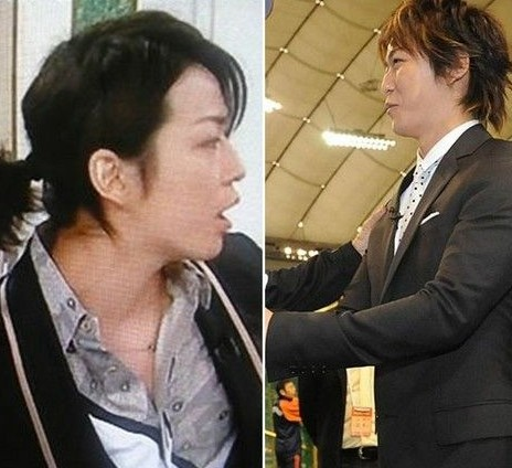 日本偶像龟梨和也鼻梁塌陷?