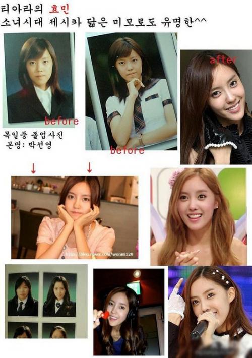 美女整容变加菲猫 图揭越整越丑的韩国女星图