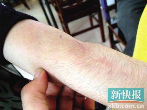 阿奥展示手臂上被父亲用竹条打后留下的伤痕。