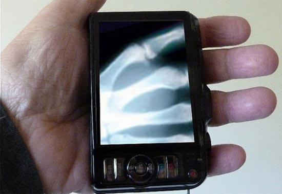 这种新型的太赫兹微芯片,可以使通常的智能手机变成一台家用健康扫描仪。