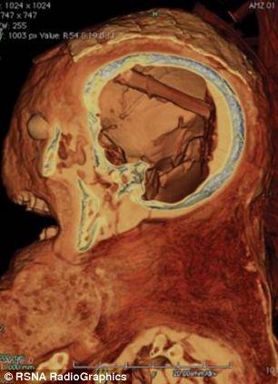 科学家们发现一个竹制的大脑移除工具在该木乃伊头骨中