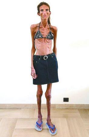 如今体重27公斤的瓦莱丽娅