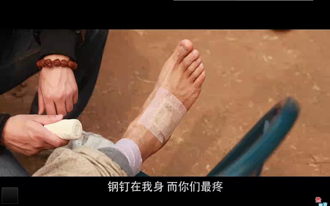 张杰光脚_脚受伤了mv截图黄晓明脚部受伤骨折 张杰脚受伤图片