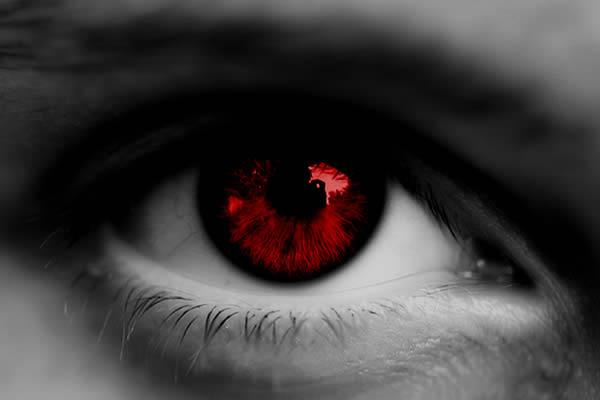 切记不能揉眼睛,因为手是脏的,揉眼睛又会造成二次感染,无疑雪上加霜.