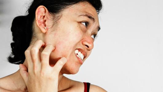 美国科学家最新研究揭晓人体发痒的根源所在――脊椎附近的特殊神经细胞