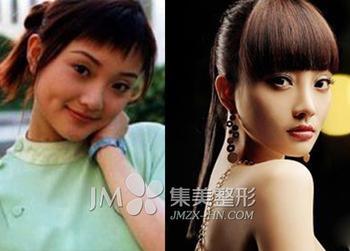 小璐刘亦菲大S孙菲菲 海量女星整容前后对比照