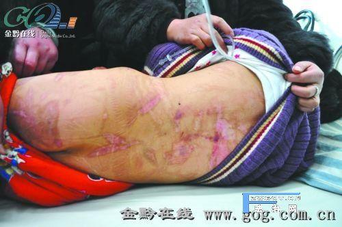 手机拍万国版操逼囹�a_母亲烧红火钳烫12岁女儿全身 伤口处可见骨头