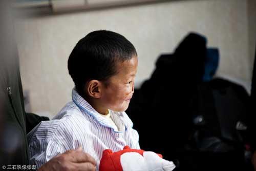 小布尼玛到北京八大处整形医院第一次就诊