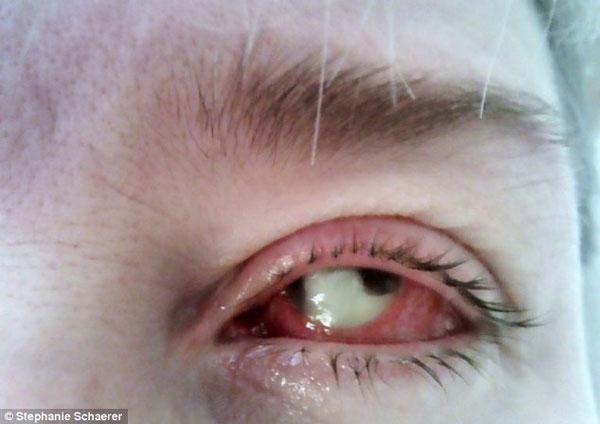 眼球摘除_女子戴视康隐形眼镜一天后感染 被迫摘除眼球(组图)