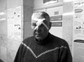 2月15日,俄罗斯车里雅宾斯克的一家医院,因陨石坠落致伤的伤者。