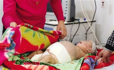 2月19日,八个月大的患儿康康肚子鼓得像个西瓜。新京报记者 韩萌 摄