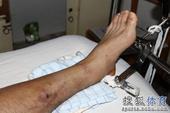 中甲图:建业队长热身受伤 脚部伤情