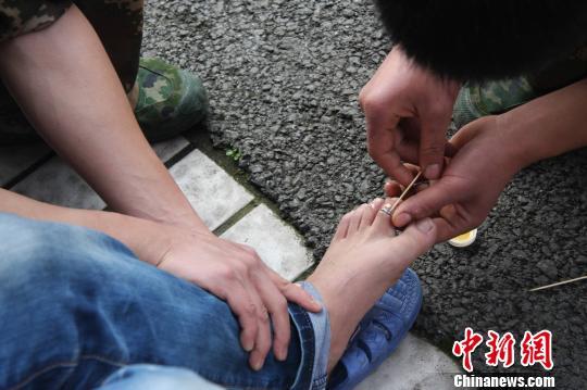 图为男子被婚戒卡脚趾,消防人员正在施救。 朱媛媛 摄