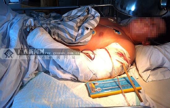 受伤民工仍在医院救治。记者 许海鸥摄