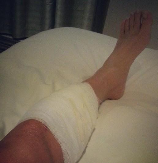 梦到前男友腿受伤了