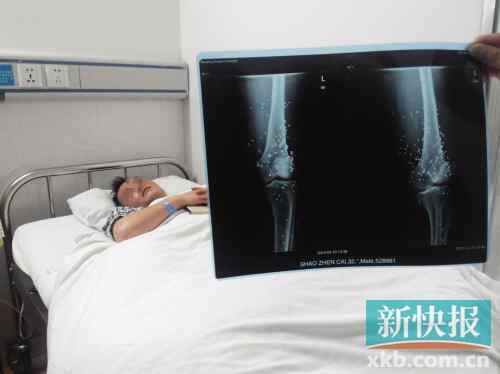 邵振才躺在病床上痛苦不已,他的双腿留有数百粒霰弹。