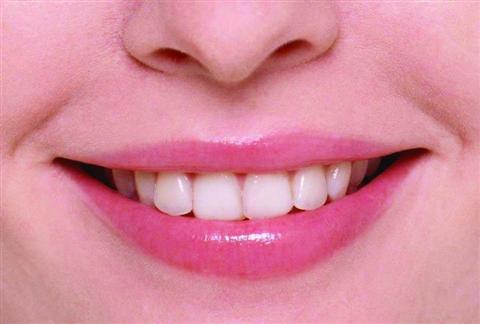 牙美效果真的有效