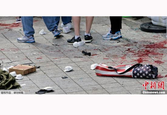 3岁男童炸断腿 医生叹波士顿爆炸案:惨如战场