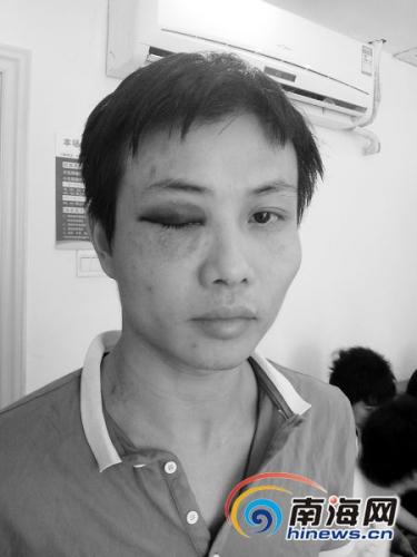 受伤的小王本报记者聂元剑摄