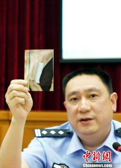 乐昌市公安局副局长刘洪介绍人质受伤情况 李凌 摄