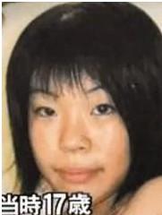 日19岁少女整容前。