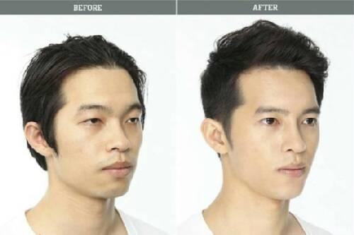 韩星整容前后对比照曝光看韩国明星到底有多丑