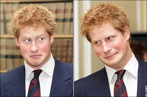 哈里整形_哈里王子两年没洗头 为支持\