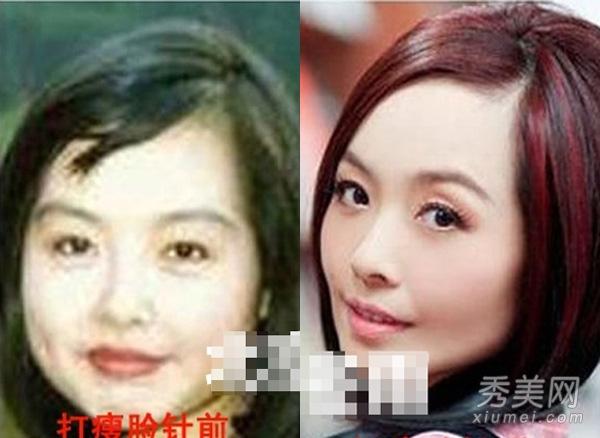 揭女星打瘦脸针前后对比照