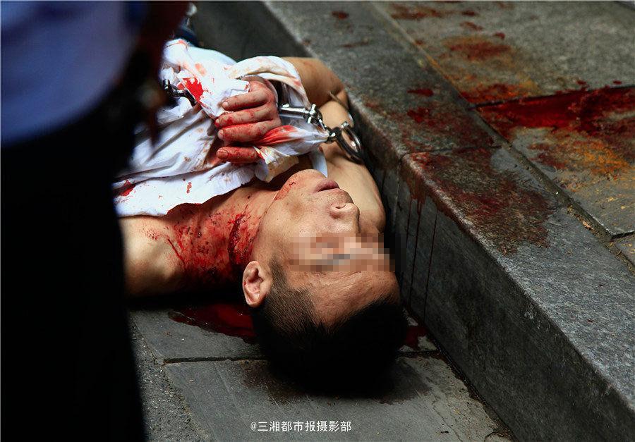 扒手被抓后街头用刀划脖子自残 血流成河(图)