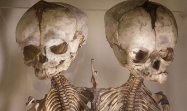 英格兰巴特的病理学博物馆