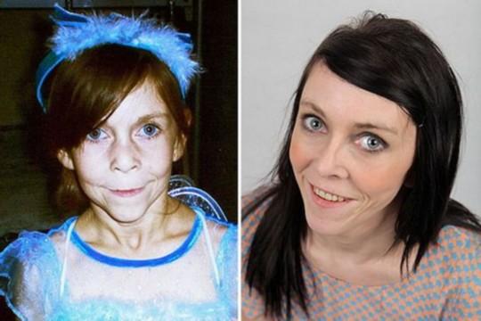 左图是扎拉Zara Hartshorn整形前,整形后右图外貌年轻一些了