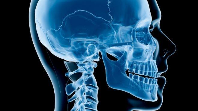 脑部骨头结构图