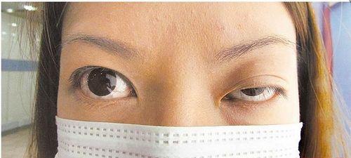 台湾新娘打肉毒杆菌变大小眼 蜜月照镜就哭(图)