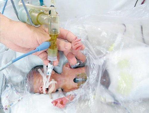 袖珍男婴的很多器官均发育不全
