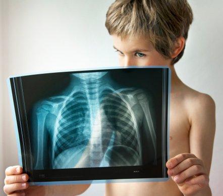 食管癌是由于哪些原因引起的-食道癌