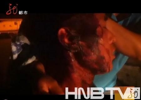 卖瓜的小贩被行政执法人员打伤。图片来源:视频截图