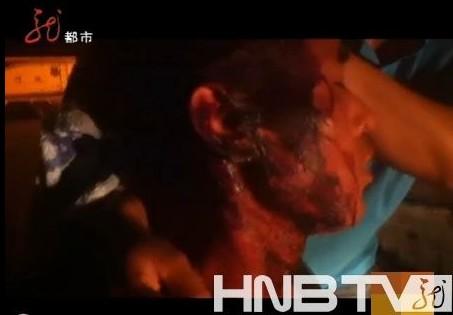 哈尔滨市城管打伤瓜农:城管局长做检查 执法人员被停职