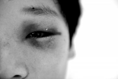 蒋文豪脚踝骨折,身上多处挫伤,左眼淤青。